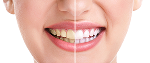 Teeth Whitening Newtown Square, PA
